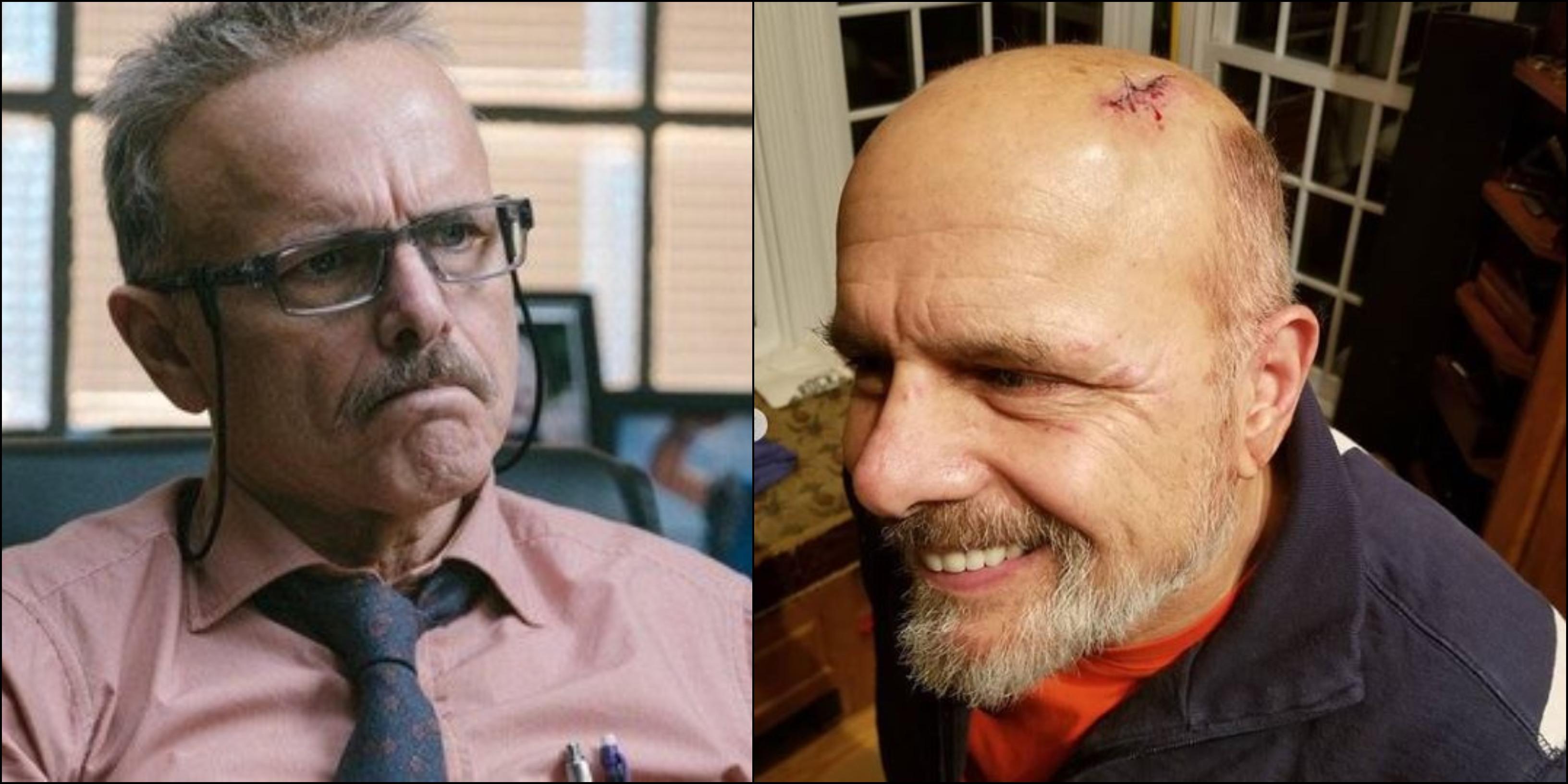 Joe Pantoliano, investito per strada: ferito alla testa