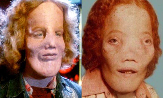 Dietro la Maschera: la vera storia di Rocky Dennis e le differenze con il film