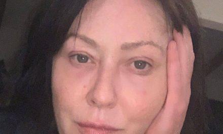 "Shannen Doherty: ""Sono sopravvissuta al cancro… il mio viso riflette la mia vita"""